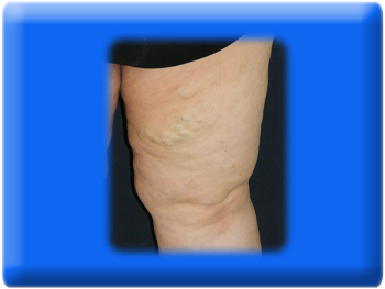 Varicose Veins Classical Treatment, Traditional Varicose Veins Surgery