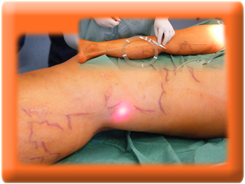 Endovenous Laser Therapy, Varicose Veins Laser Removal Treatment