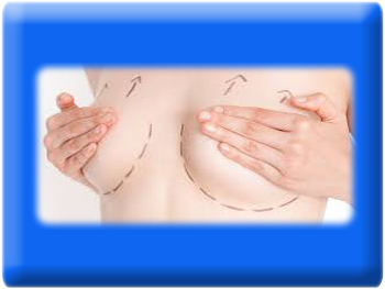 Breast Lift, Mastopexy